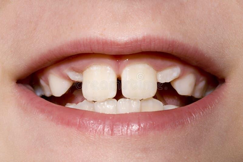 Zahn-Nahaufnahme des jungen Jungen lizenzfreie stockfotos