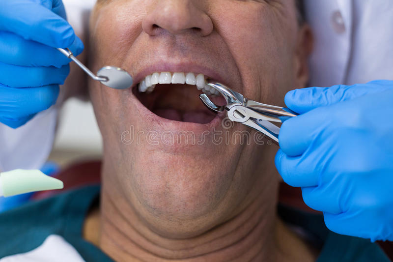 Zahnarzt, der chirurgische Zangen verwendet, um einen verfallenden Zahn zu entfernen stockfoto