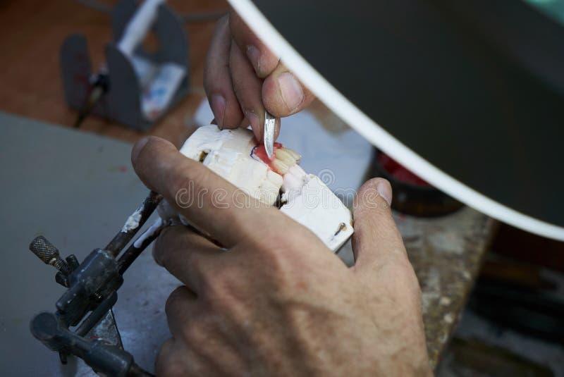 Zahnarzthände hält Prothesen auf einem Gipskiefer im Labor stockfotos
