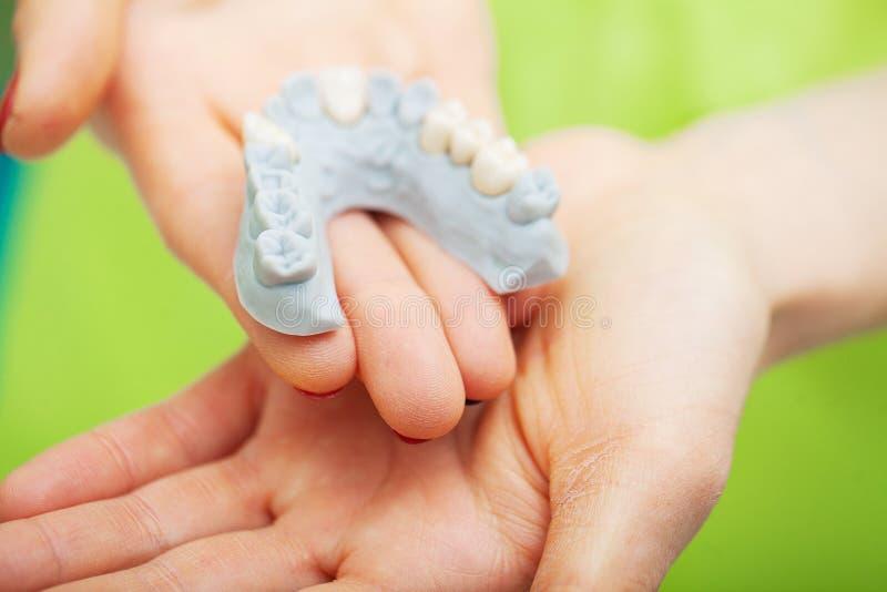 Zahnarzthandholding des Kiefermodells der Zähne und der Reinigung zahnmedizinisch mit zahnmedizinischem Werkzeug Technische Schüs lizenzfreie stockfotos