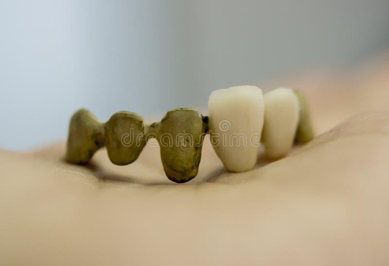 Zahnbrücke und Kronen lizenzfreies stockfoto