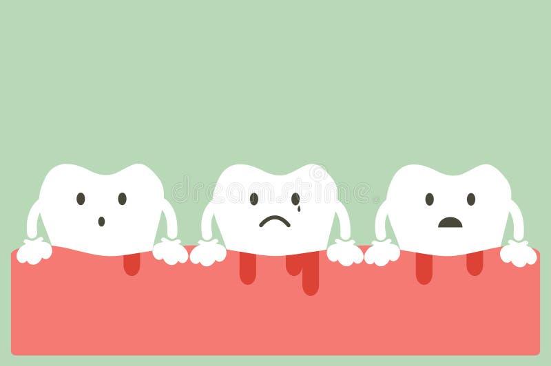 Zahnfleischentzündung und Bluten stock abbildung