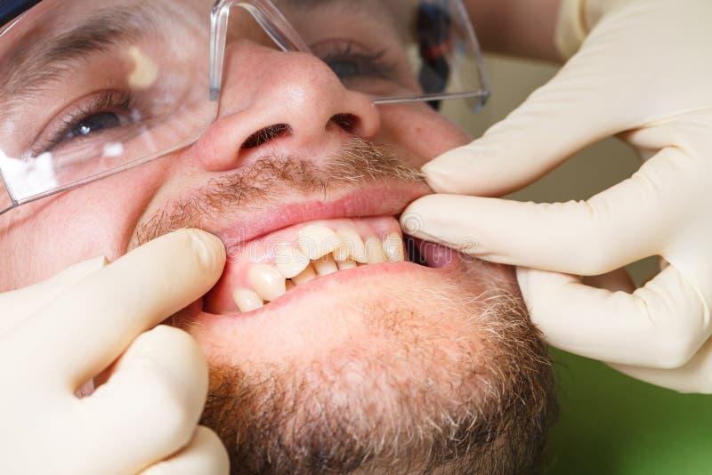Zahnheilkunde, geduldige Prüfung und Behandlung am Zahnarzt stockfotos