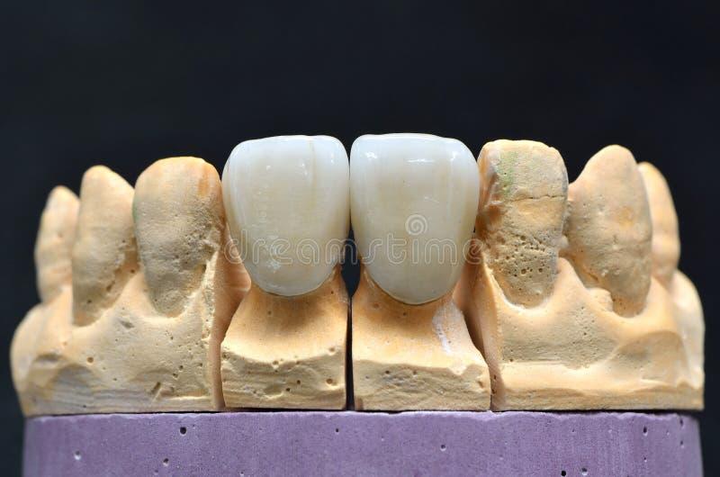 Zahnimplantat der Porzellanzähne lizenzfreie stockfotografie