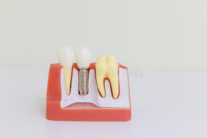 Zahnimplantatmodell Menschliches Implantat des Zahnes Zahnmedizinisches Konzept Menschliche Zähne oder Gebisse Implan-Modellzahns stockfoto