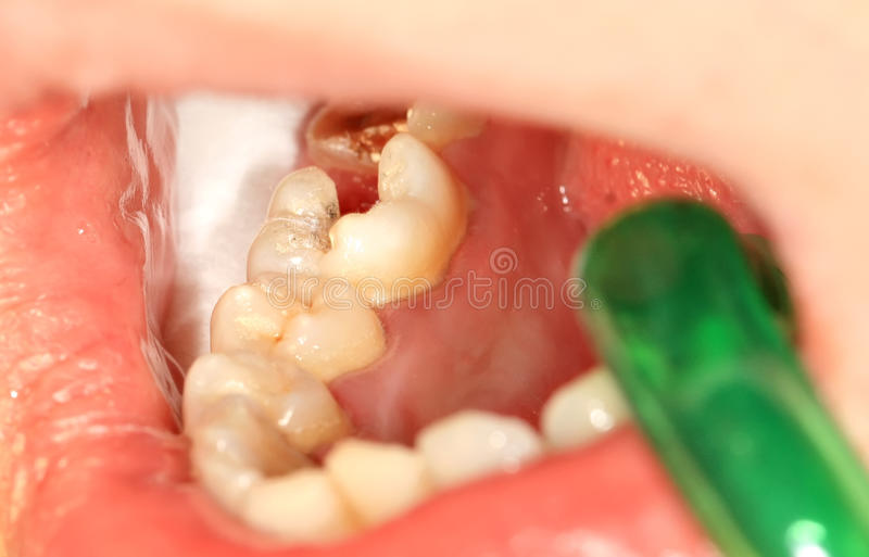 Zahnmedizinische Behandlung lizenzfreie stockfotografie
