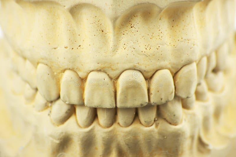 Zahnmedizinische Form für zahnmedizinische Prothese lizenzfreie stockfotografie