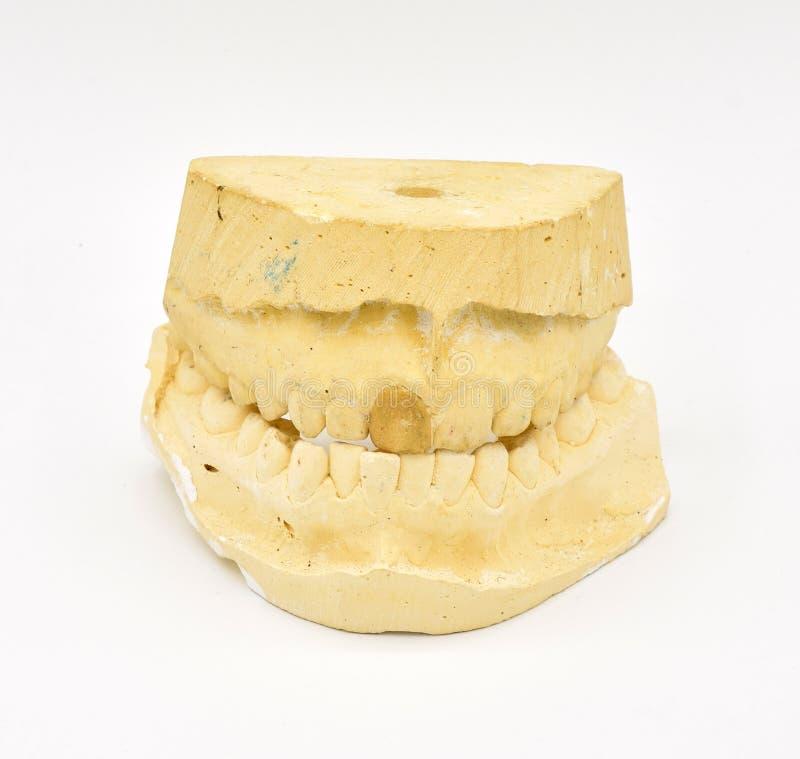 Zahnmedizinische Formen auf weißem Hintergrund lizenzfreie stockfotografie