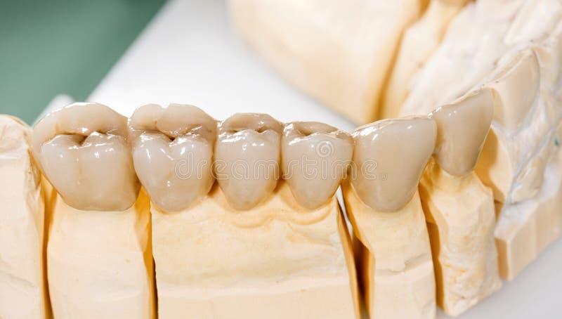 Zahnmedizinische Keramische Brücke Stockbild - Bild von krone ...