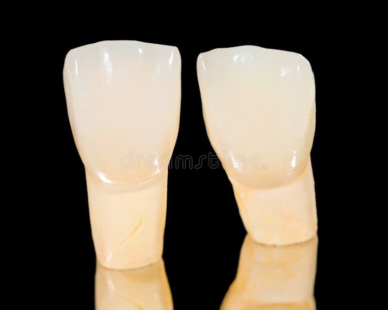 Zahnmedizinische keramische Kronen lizenzfreie stockbilder