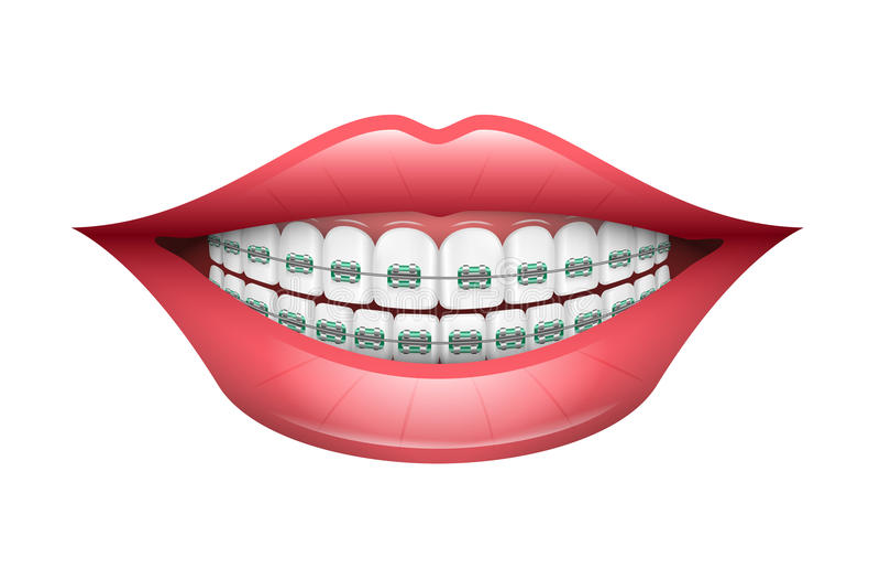 Zahnmedizinische Klammern lizenzfreie abbildung