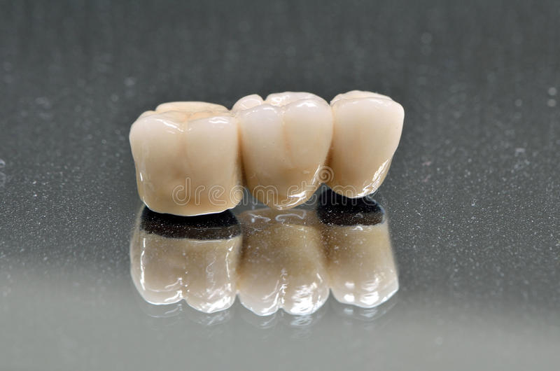 Zahnmedizinische Krone des Porzellans lokalisiert stockfotografie