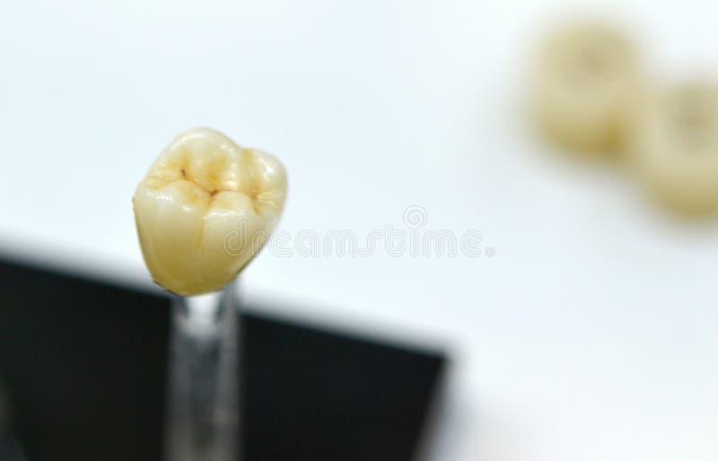 Zahnmedizinische Kronennahaufnahme lizenzfreie stockfotos