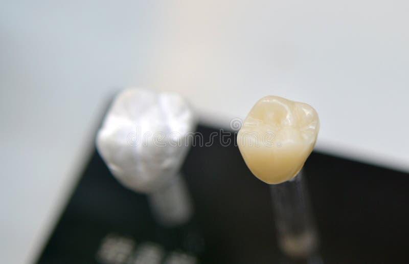Zahnmedizinische Kronennahaufnahme lizenzfreie stockfotografie