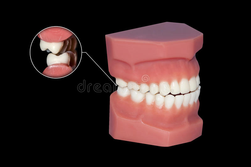 Zahnmedizinische Molaren des Zähneknirschens schließen oben lizenzfreie stockbilder