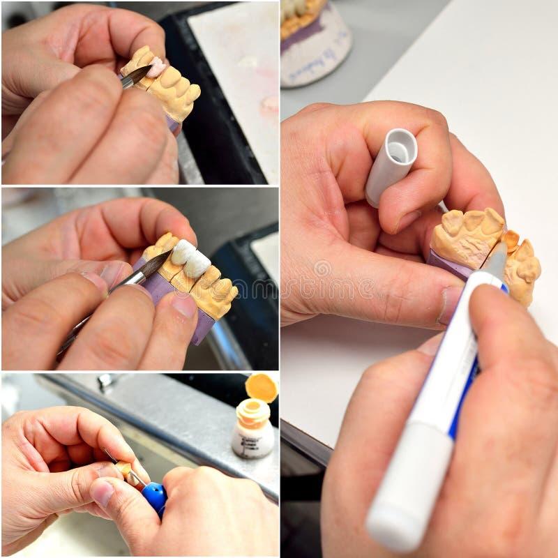 Zahnmedizinische Prothese, die weg von der Collage macht stockfoto