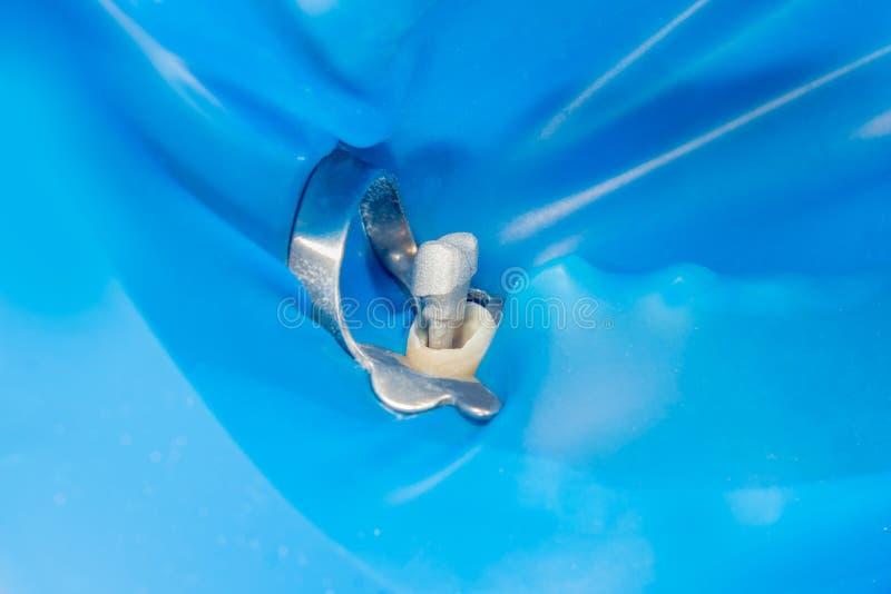 Zahnmedizinische Stiftnahaufnahme, Vorbereitung des Zahnes für das formulatio stockbilder
