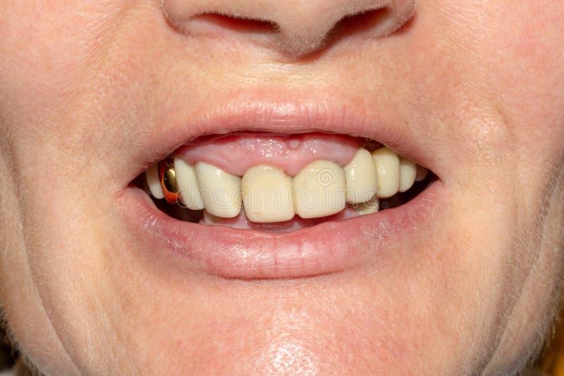 Zahnmedizinische Wiederherstellung von faulen Wurzeln der Zähne mit keramischen Kronen geworfene Postenzahnheilkunde lizenzfreie stockfotografie