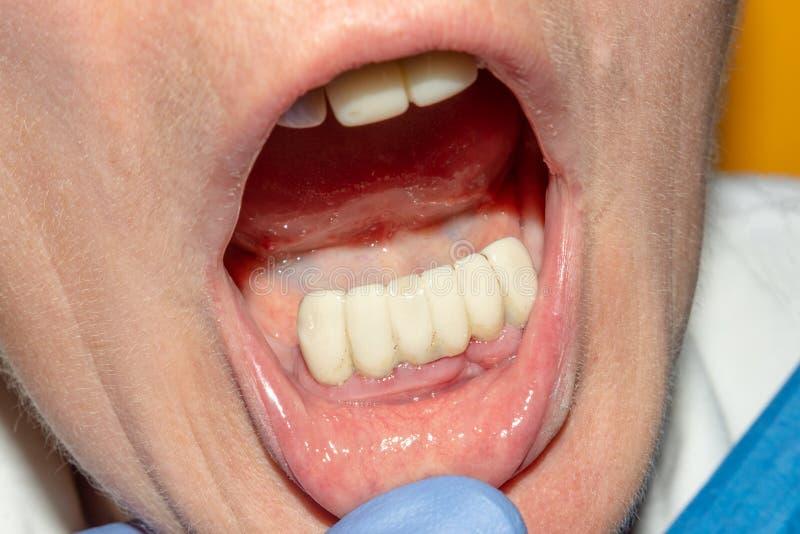 Zahnmedizinische Wiederherstellung von faulen Wurzeln der Zähne mit keramischen Kronen geworfene Postenzahnheilkunde stockbild