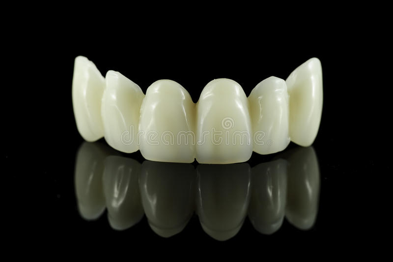 Zahnmedizinische Zahn-Brücke stockfotografie