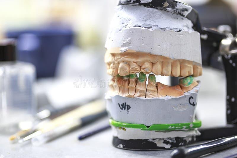 Zahnmedizinischer Artikulator im zahnmedizinischen Labor stockbild