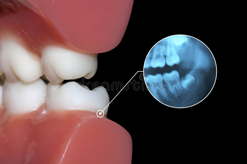 Zahnmedizinischer Diagnose wisodm Zahn lizenzfreie stockfotografie