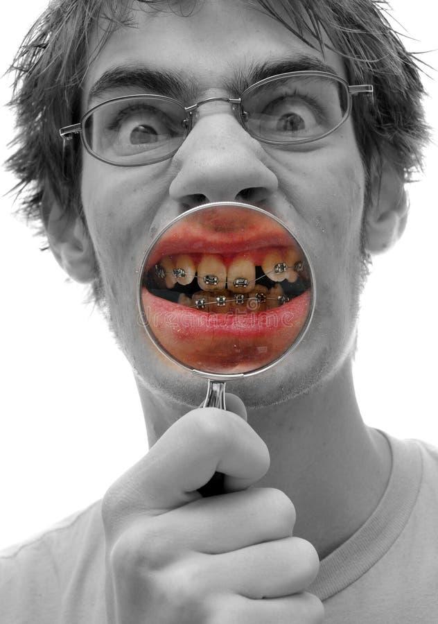 Zahnmedizinischer Mund befestigt Kontrolle stockfotografie