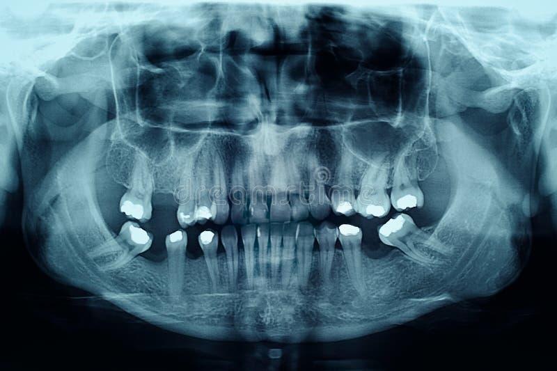 Zahnmedizinischer Röntgenstrahl, der Füllungen in den Zähnen zeigt stockbilder