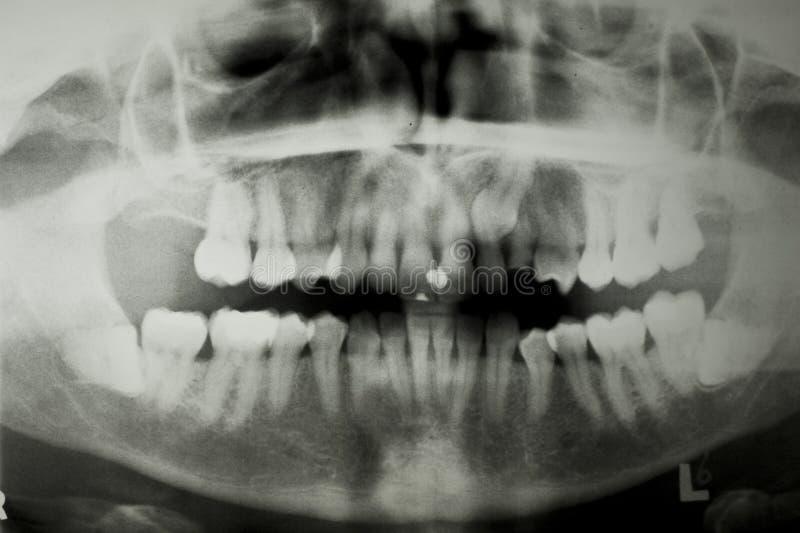 Zahnmedizinischer x-Strahl lizenzfreie stockfotos