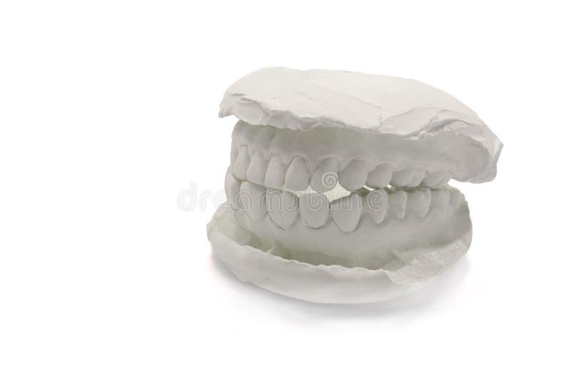Zahnmedizinischer vorbildlicher Gips auf dem weißen Hintergrund, lokalisiert Gipsmodellkiefer mit künstlichen zahnmedizinischen E stockbild