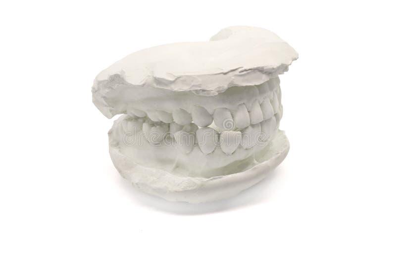 Zahnmedizinischer vorbildlicher Gips auf dem weißen Hintergrund, lokalisiert Gipsmodellkiefer mit künstlichen zahnmedizinischen E lizenzfreie stockbilder