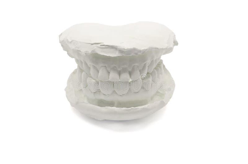 Zahnmedizinischer vorbildlicher Gips auf dem weißen Hintergrund, lokalisiert Gipsmodellkiefer mit künstlichen zahnmedizinischen E lizenzfreies stockbild