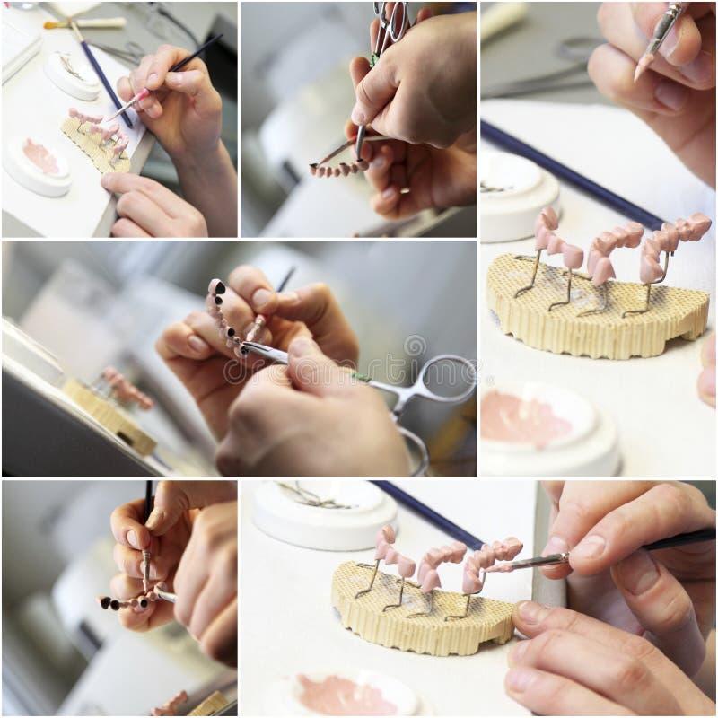 Zahnmedizinischer Zahnarzt wendet Collage ein stockbilder