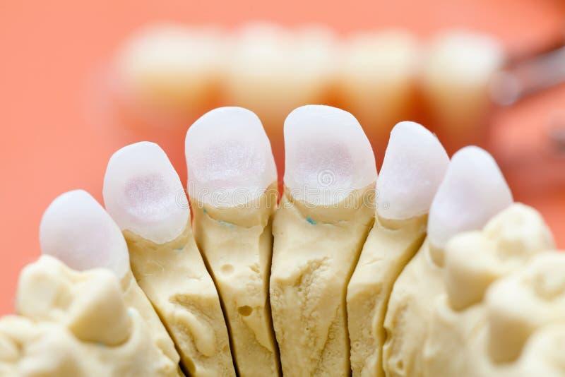 Zahnmedizinischer Zircon/gepresstes keramisches lizenzfreie stockfotos