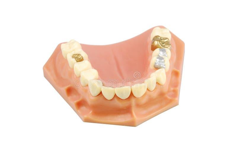 Zahnmedizinisches Baumuster (mit verschiedenen Behandlungen) stockbild
