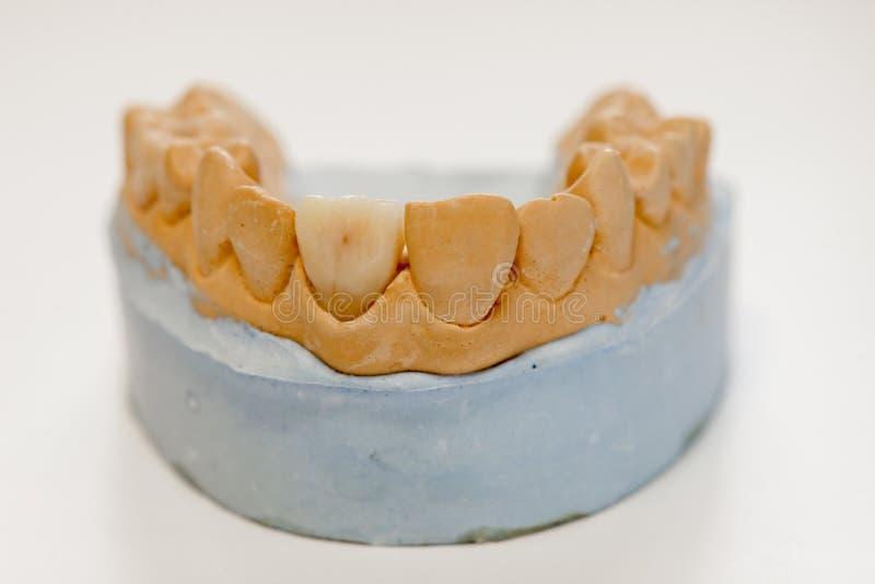 Zahnmedizinisches Gipsmodell im Zahnarztlaborbüro - Nahaufnahme Gips-Gebisse mit den Porzellanzähnen lokalisiert auf weißem Hinte lizenzfreie stockbilder