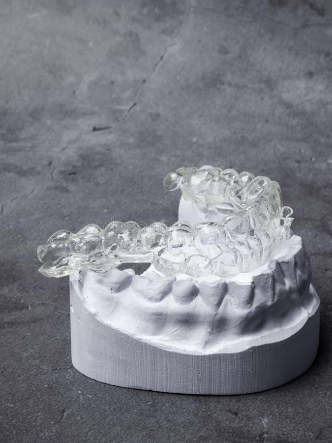 Zahnmedizinisches Gipsmodell von menschlichen Kiefern vor Behandlung mit Klammern Technische Schüsse auf grauem Hintergrund stockbild