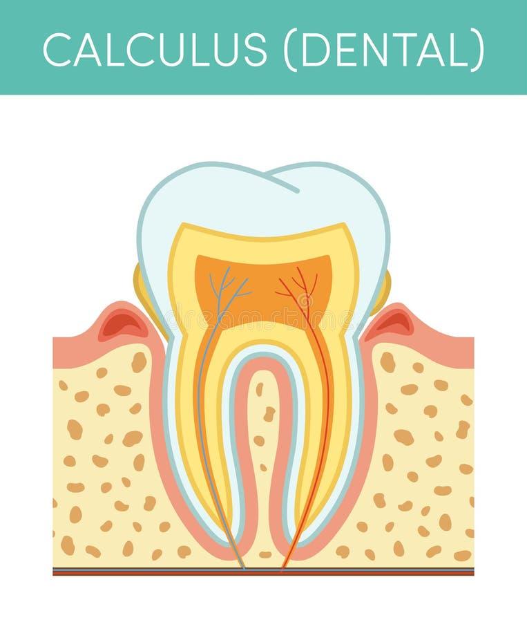 Zahnmedizinisches Kalkül lizenzfreie abbildung