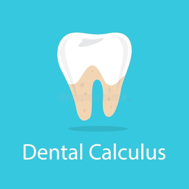 Zahnmedizinisches Kalkül Schlechte Mundhygiene und beschädigt lizenzfreie abbildung