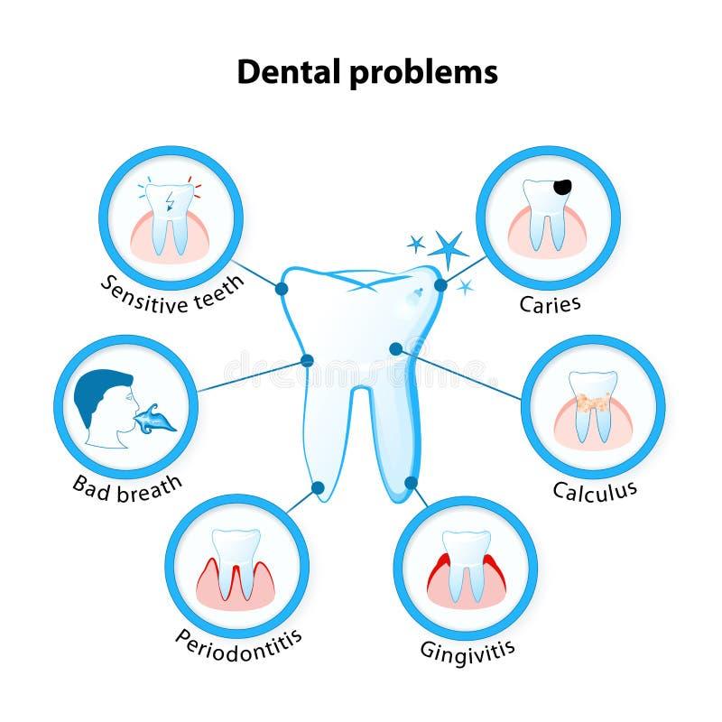 Zahnmedizinisches Problem lizenzfreie abbildung
