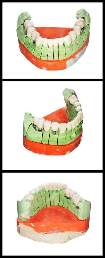 Zahnmedizinisches Prothesebaumuster trennte stockfoto