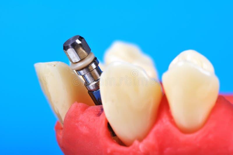 Download Zahnmedizinisches Zahnimplantat Stockbild - Bild von öffnung, krone: 47101521