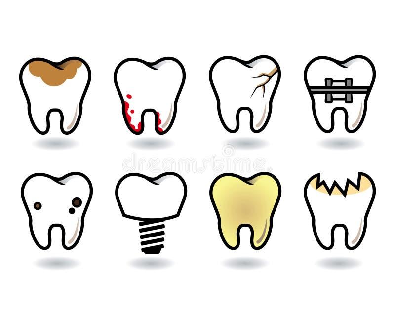 Zahnsatz stockfotos