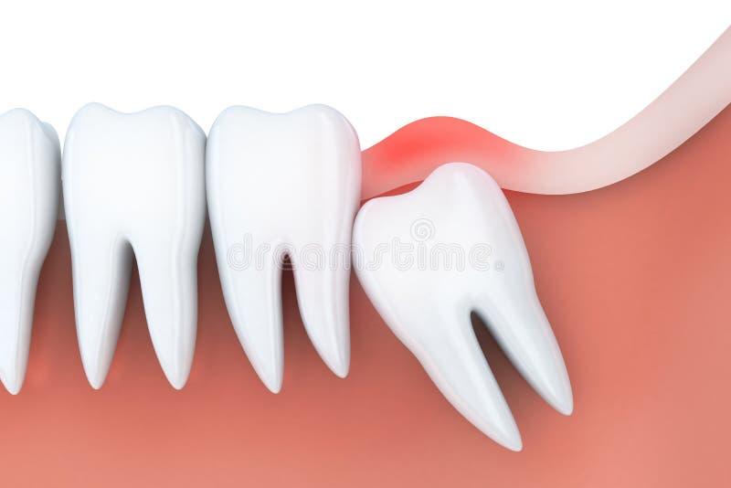 Zahnschmerzen im Weisheitszahn vektor abbildung