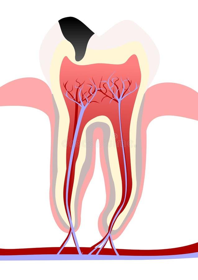 Zahnverfall lizenzfreie abbildung