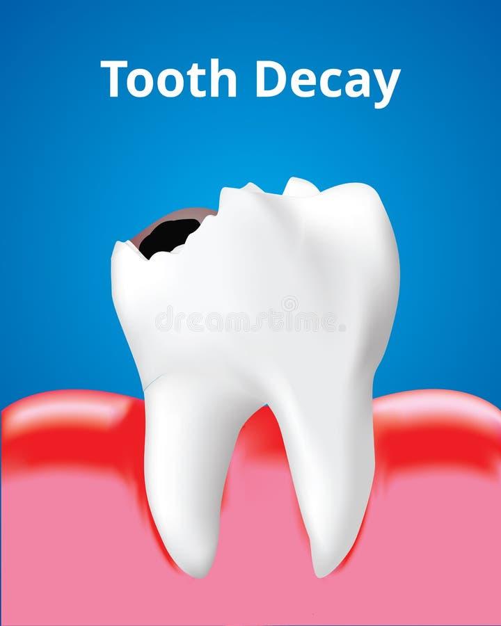 Zahnverfall mit entflammtem Gummi, Zahnpflegekonzept, realistischer Entwurf Vektor lizenzfreie abbildung