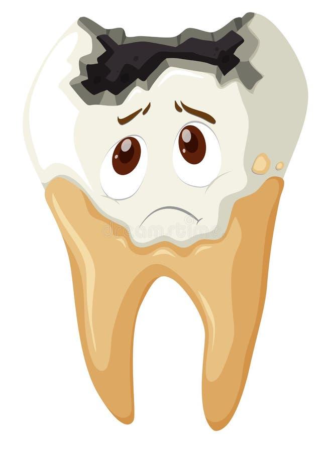 Zahnverfall mit traurigem Gesicht vektor abbildung