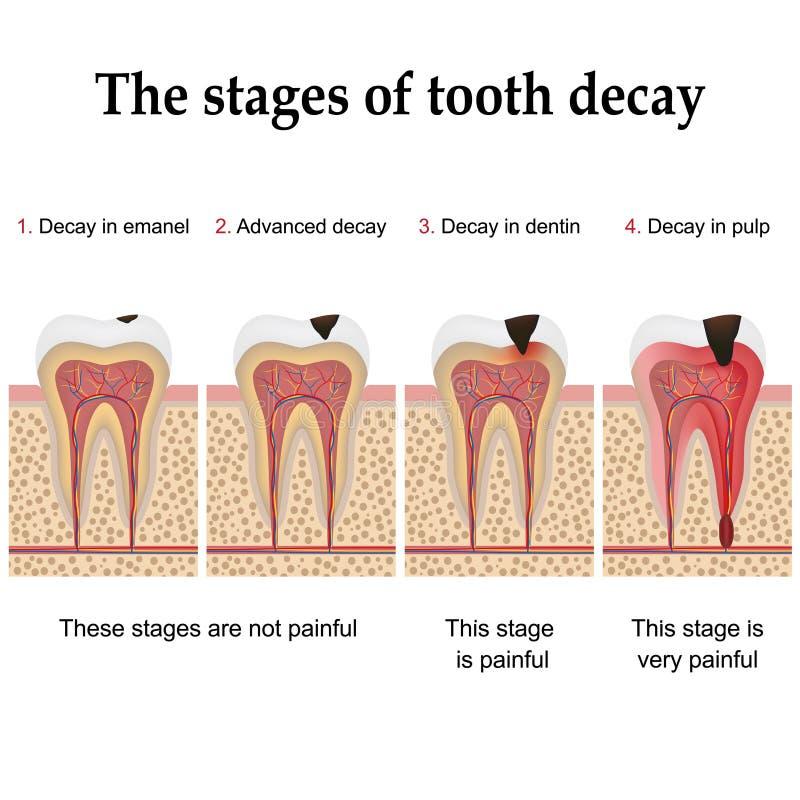 Zahnverfallbildung stock abbildung