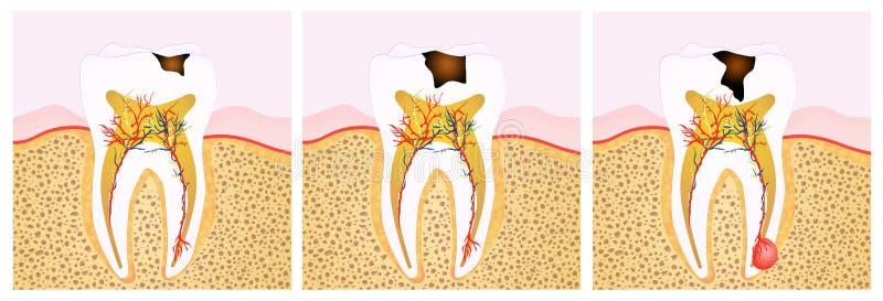 Zahnverfallentwurf vektor abbildung
