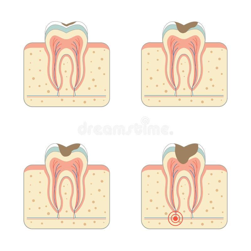 Zahnverfallkrankheit stock abbildung